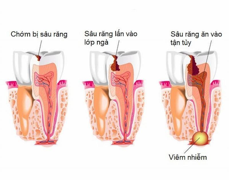Các mức độ sâu răng thường gặp