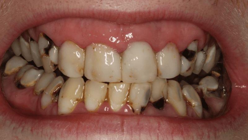 Khe răng bị sâu làm người bệnh khó khăn trong ăn uống và tự ti khi giao tiếp