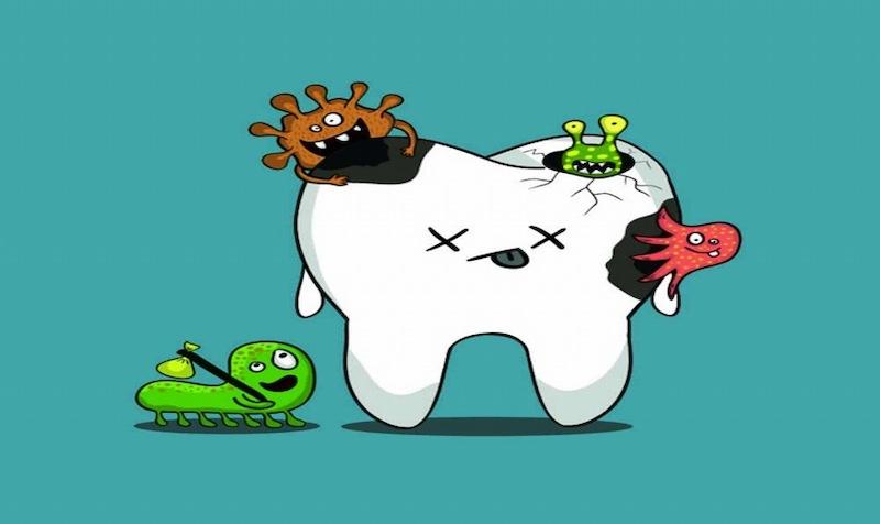 Nguyên nhân gây bệnh chính là do vi khuẩn tấn công men răng