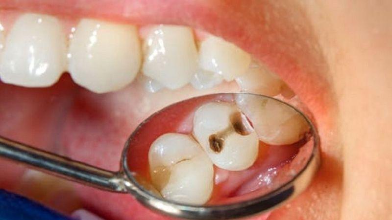 Sâu răng có thi quân đội được không