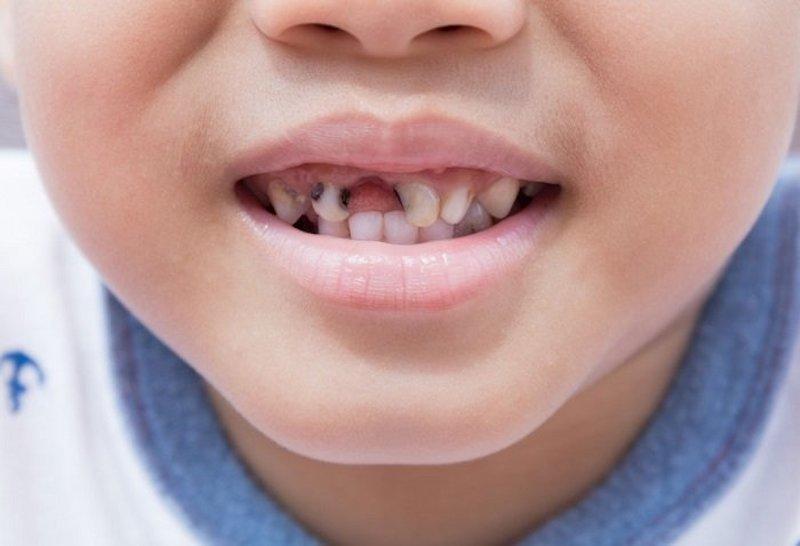 Sâu răng cửa ở trẻ em hay người lớn đều là hiện tượng rất phổ biến