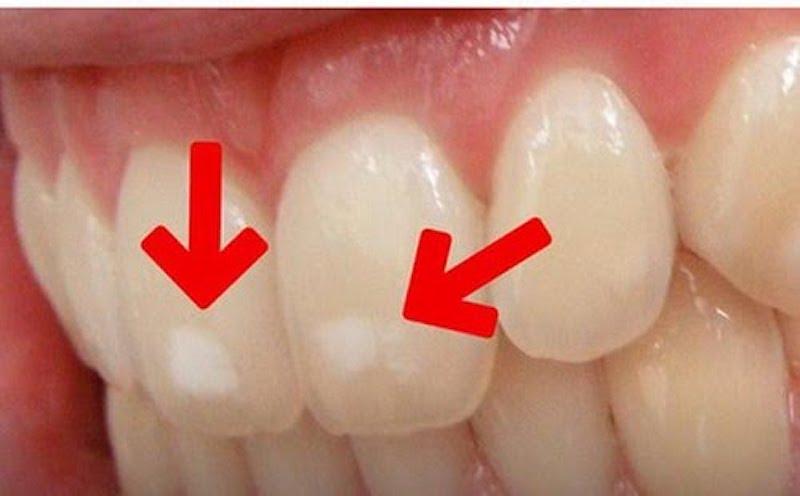 Bệnh có thể gây hại men răng, làm cho răng kém dần