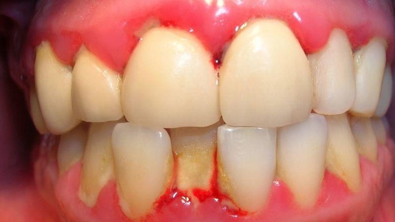 Mảng bám hình thành và hủy hoại men răng