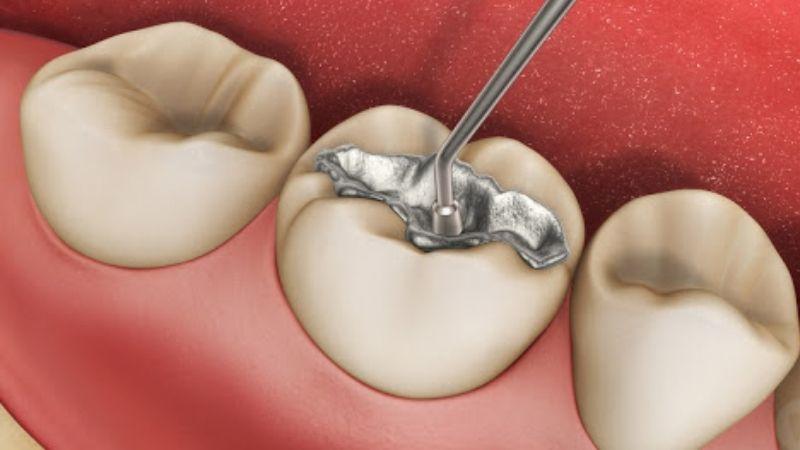 Người bệnh hàn răng hoặc bọc sứ