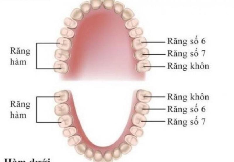 Có nhiều nguyên nhân gây sâu răng số 6