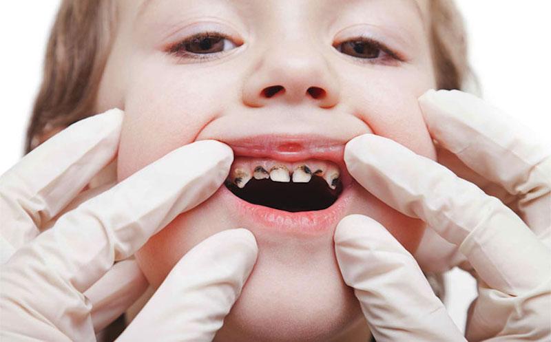 Sâu răng trẻ em có thể nhận biết thông qua màu sắc trực tiếp trên răng