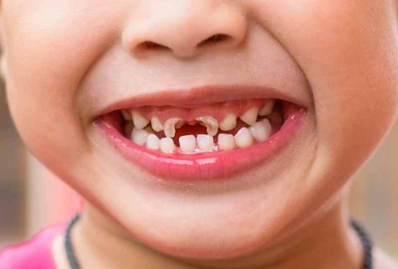 Sún răng là gì?