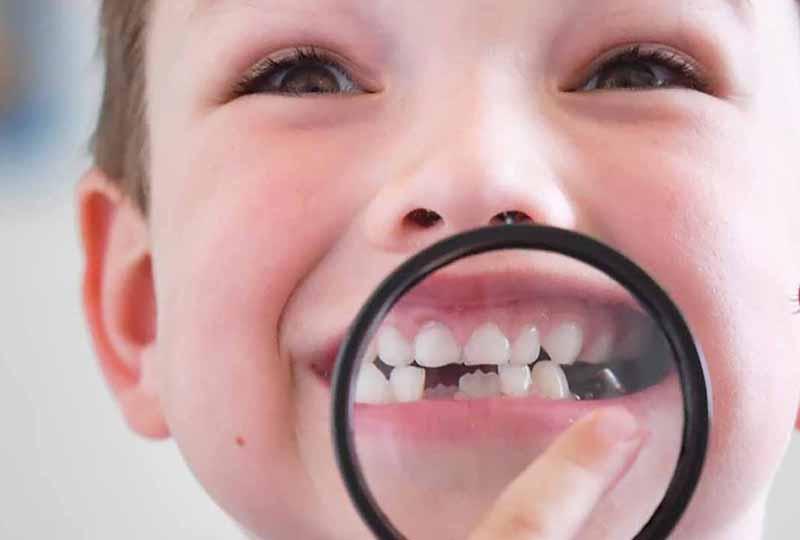 Tình trạng răng bị sún ở trẻ có thể nhận biết bằng mắt thường