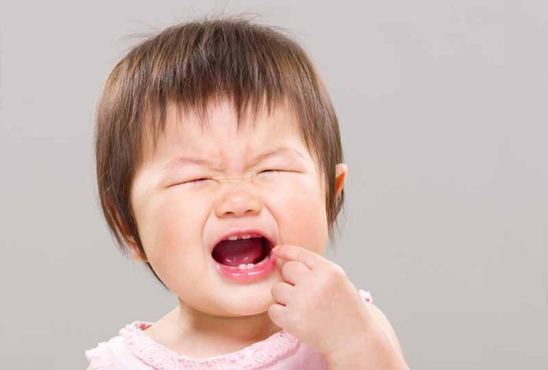 Sún răng gây ảnh hưởng đến sức khỏe răng miệng trẻ