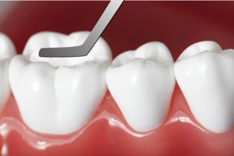 Trám răng là cách trị sâu răng giai đoạn đầu hiệu quả mà tiết kiệm chi phí nhất