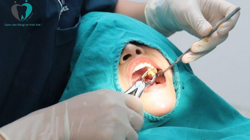 Nhổ răng là phương pháp chữa bệnh tốt nhất