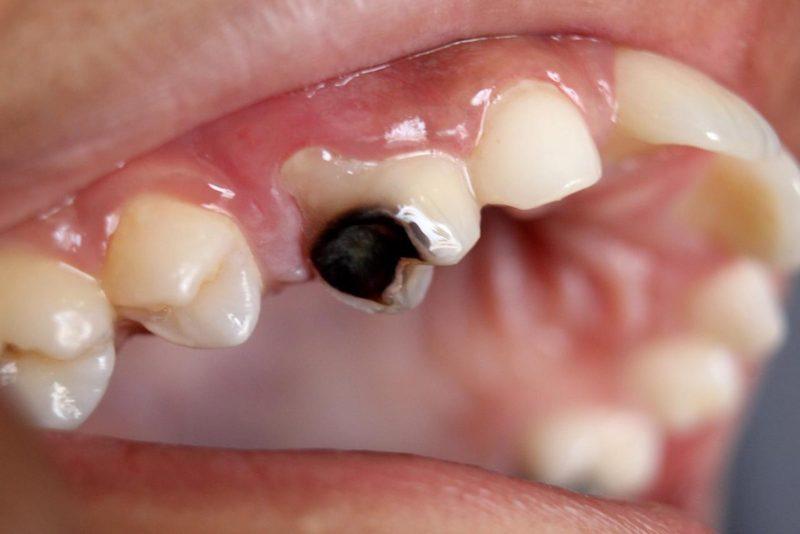 Sâu răng, viêm tủy răng lây ngày là những nguyên nhân hàng đầu gây bệnh