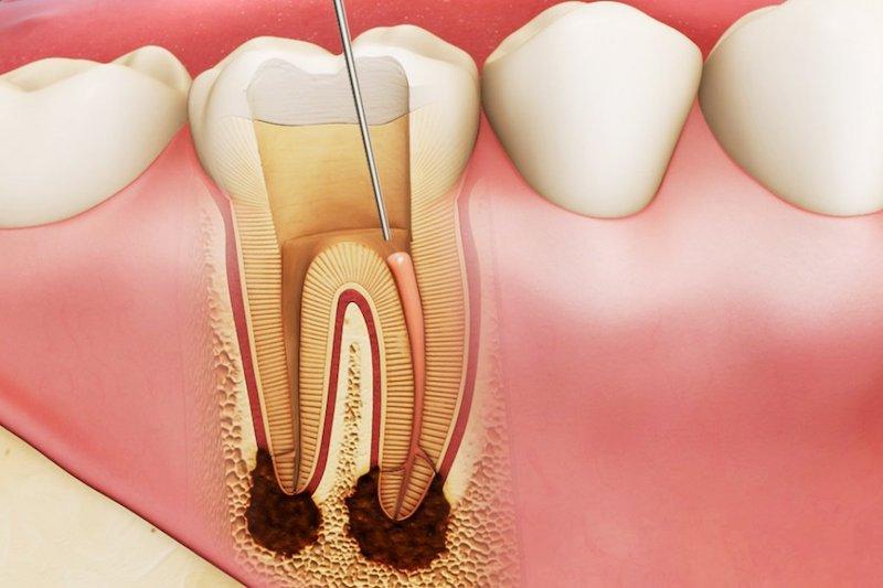 Áp xe nướu răng lâu ngày có thể làm cho răng yếu đi, ảnh hưởng đến ăn uống hàng ngày
