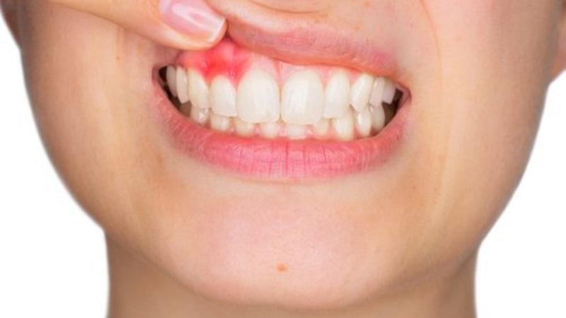 Áp xe quanh chóp răng bắt nguồn từ tủy răng