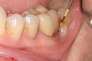 áp xe quanh chóp răng là gì