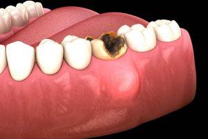 Áp xe răng có nguy hiểm không hiện đang là vấn đề được rất nhiều người bệnh quan tâm