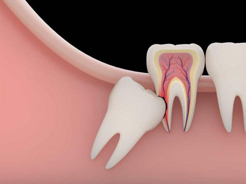 Răng số 8 thường mọc lệch, ảnh hưởng đến các răng xung quanh nên thường được khuyên nhổ bỏ