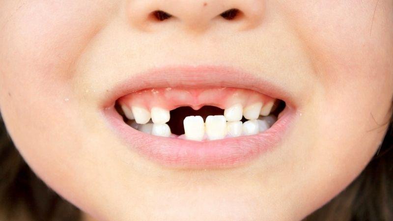 Trẻ bị rụng răng sớm hơn so với thời gian quy định
