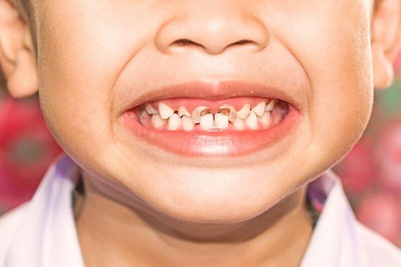 Bé bị sún răng là một bệnh lý khá phổ biến hiện nay