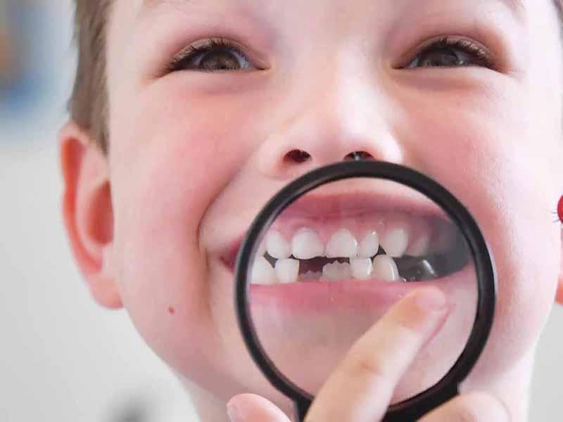 Răng sún bị rụng sớm gây ảnh hưởng đến thời gian mọc răng vĩnh viễn