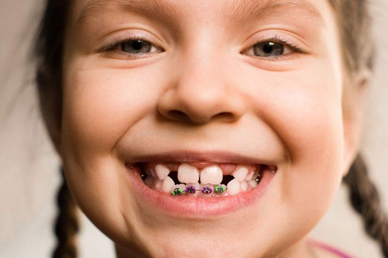 Các loại niềng răng hiện nay phổ biến nhất đang là vấn đề được nhiều người quan tâm