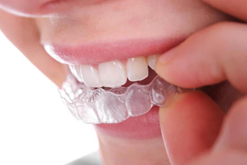 Niềng răng trong suốt siêu tiện lợi Invisalign