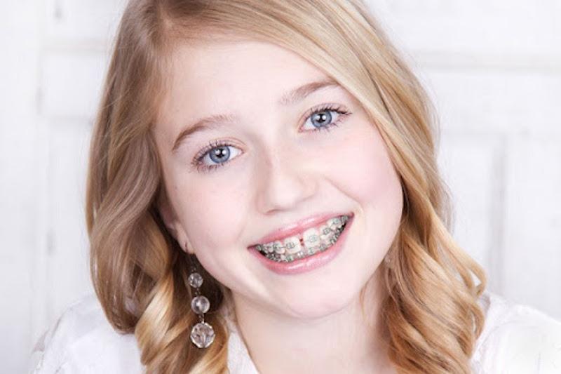 Độ tuổi thích hợp nhất để niềng răng là 12-18 tuổi