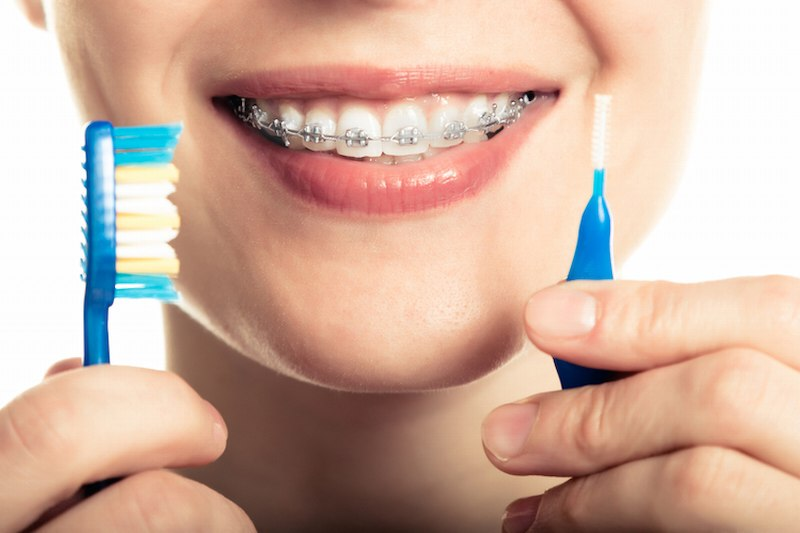 Sử dụng bàn chải vệ sinh răng miệng hàng ngày giúp loại sạch thức ăn dính vào mắc cài
