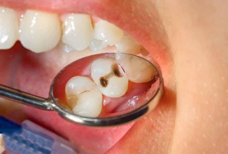 Vế sâu răng chưa được làm sạch cũng gây ê buốt răng sau trám