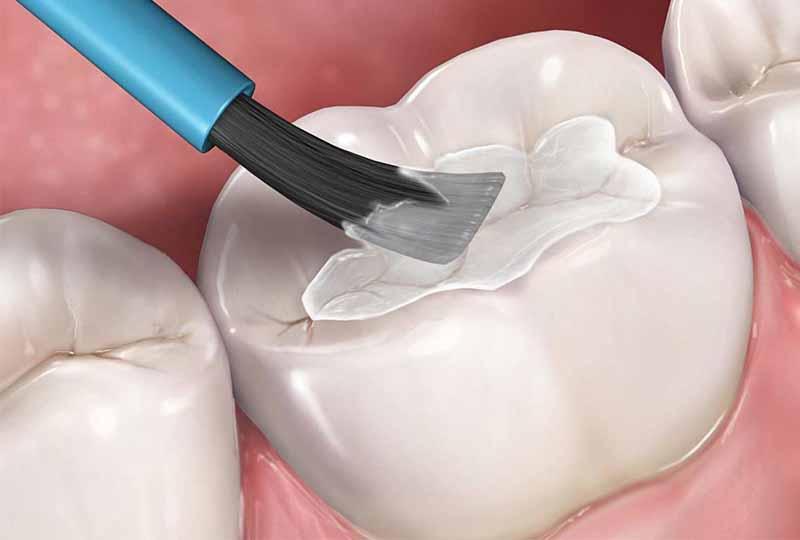 Trám răng là phương pháp phục hình răng bị tổn thương