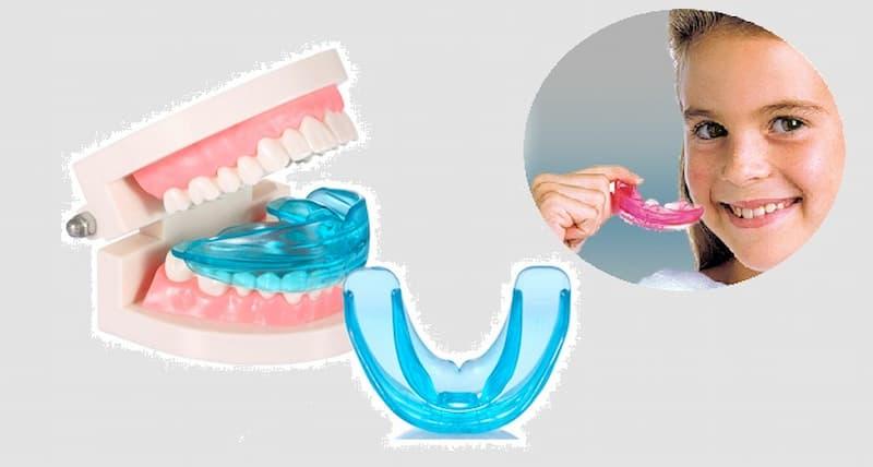 Niềng răng bằng nhựa silicon phù hợp với nhiều đối tượng từ trẻ em đến người lớn