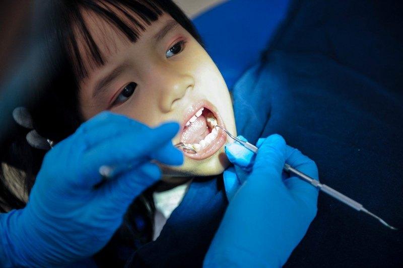 Nhổ răng sữa cho bé ở đâu tốt nhất là vấn đề nhiều phụ huynh quan tâm