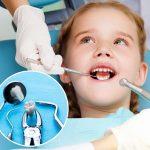 Nhổ răng sữa cho trẻ bao nhiêu tiền là thắc mắc chung của các bậc phụ huynh khi con đến kỳ thay răng