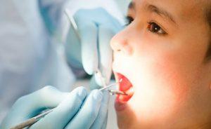 Nên thăm khám nha khoa trước khi quyết định nhổ răng cho trẻ