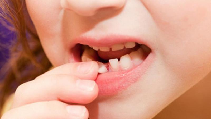Đến độ tuổi nhất định trẻ sẽ thay răng sữa thành răng vĩnh viễn