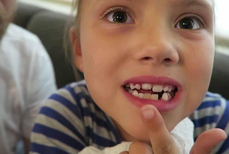 Cách nhổ không đúng có thể khiến sót chân răng