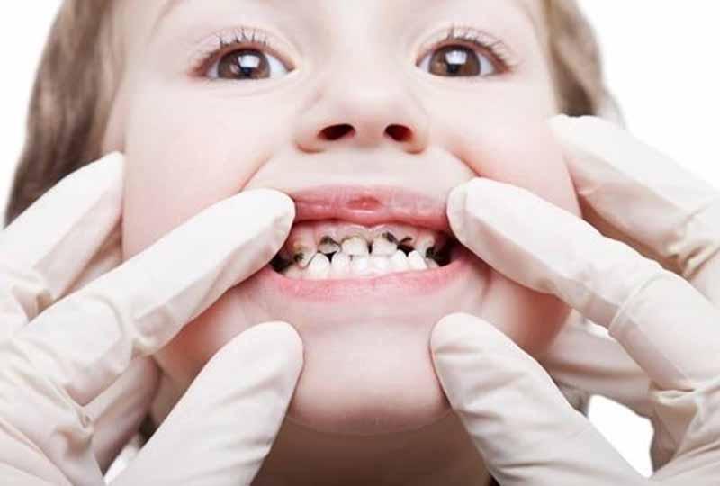 Khi còn sót chân răng sữa sau khi nhổ ba mẹ cần đưa trẻ đến gặp bác sĩ để được xử lý an toàn