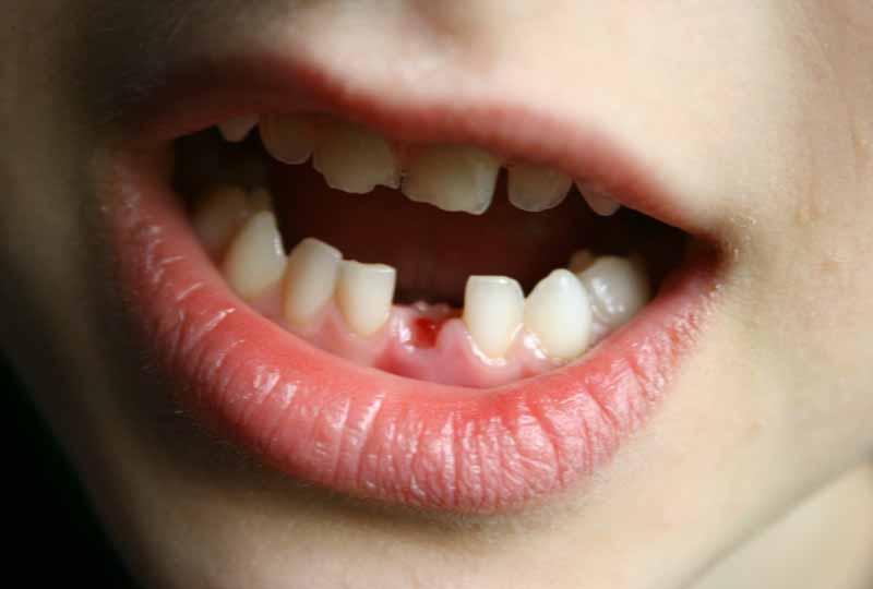 Nhổ răng sữa còn sót chân răng là tình trạng thường gặp phải khi ba mẹ tự nhổ răng tại nhà
