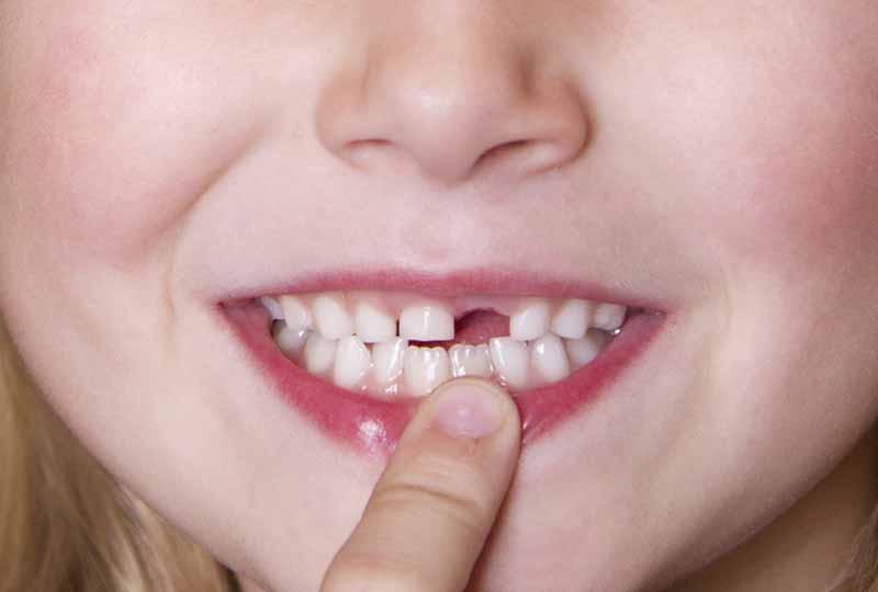 Răng sữa ở trẻ là hàm răng tạm thời