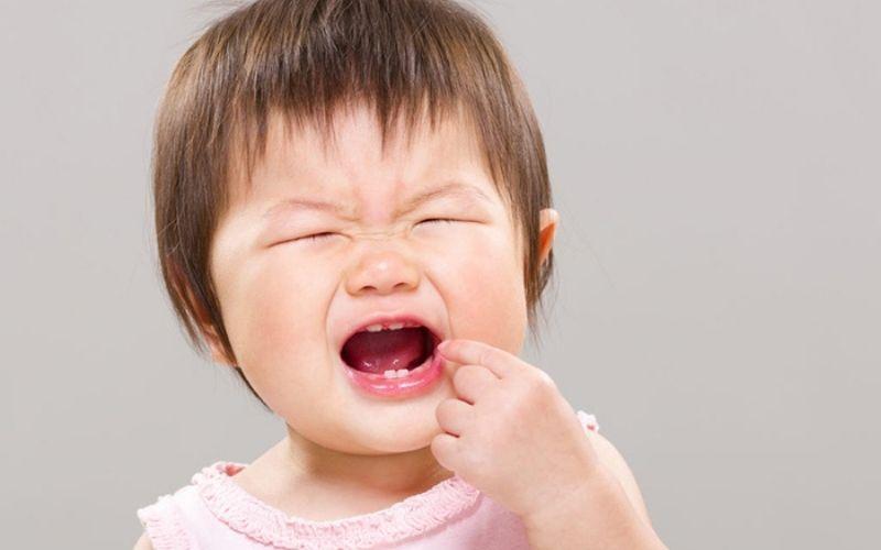 Không tự ý nhô răng tại nhà, sẽ khiến bé đau đớn