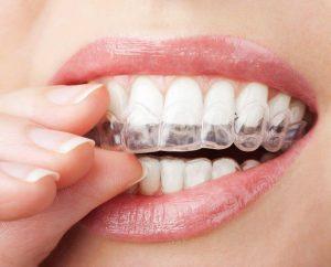 Niềng răng Invisalign có chi phí cao nhất trong các phương pháp chỉnh nha