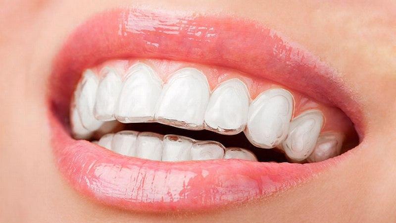 Niềng răng Invisalign là một trong các phương pháp niềng răng phổ biến