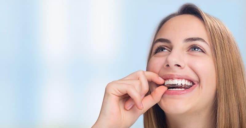 Với nhiều ưu điểm vượt trội như dễ lắp ráp, dễ vệ sinh, hiệu quả cao, niềng răng vô hình được nhiều người tin dùng