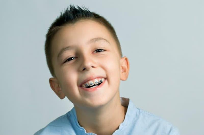 Niềng răng cho trẻ ngay từ sớm sẽ hạn chế tình trạng răng lệch lạc, giúp bé có hàm răng đều, đẹp