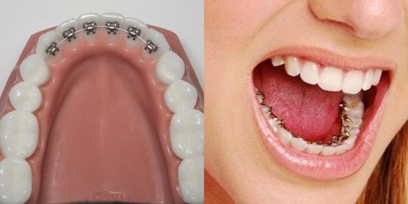 Niềng răng mặt trong dần trở thành xu hướng trong nha khoa thẩm mỹ
