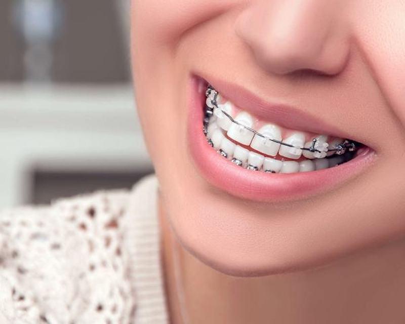 Niềng răng móm hiện đang là giải pháp được rất nhiều người quan tâm