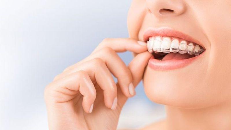 Niềng răng trong suốtđảm bảo tính thẩm mỹ và hiệu quả cho người sử dụng