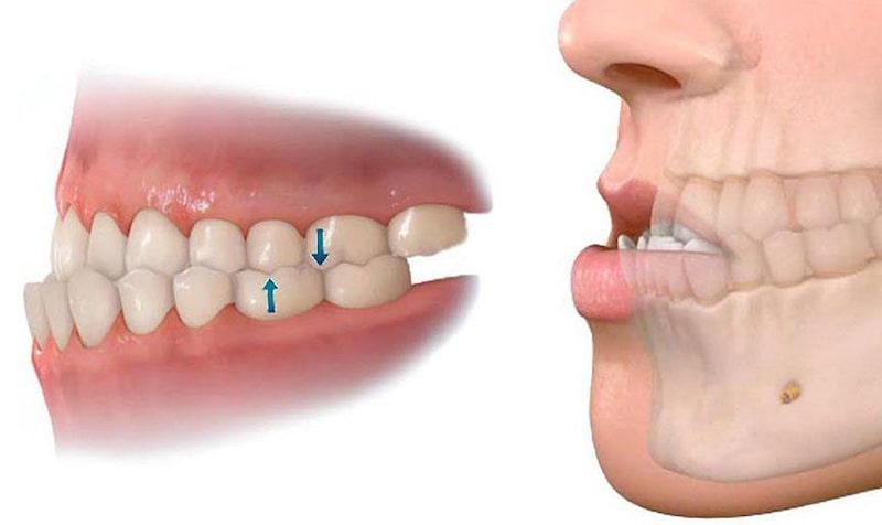 Thời gian niềng răng móm còn phụ thuộc vào mức độ lệch khớp cắn ngược của hàm lớn hay nhỏ