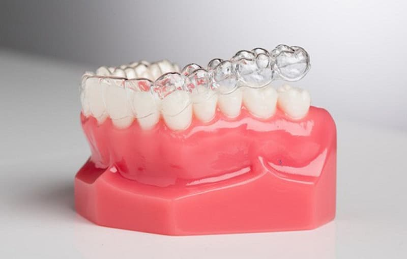 Niềng răng vô hình có đau không là thắc mắc của nhiều người