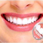 Bọc răng sứ là phương pháp nha khoa thẩm mỹ được nhiều người lựa chọn hiện nay